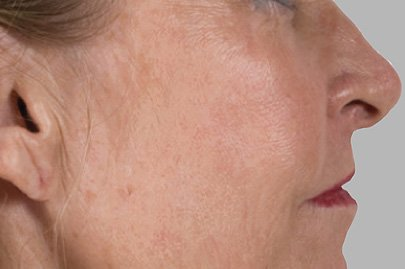 anteage_skin_after_5