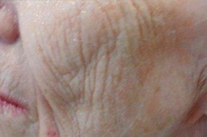 anteage_skin_before_6